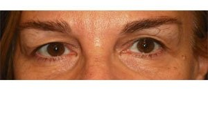 Manhattan BLEPHAROPLASTY Before 1